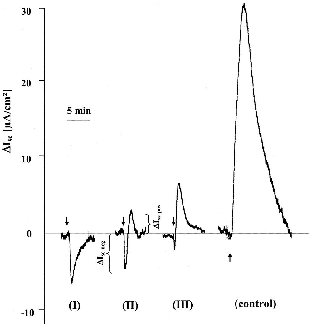 Cystic Fibrosis Transmembrane Conductance Regulator (CFTR