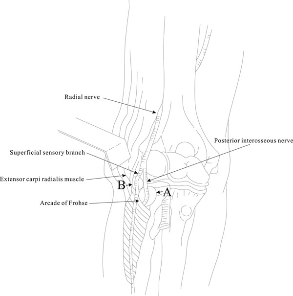 Compression of the radial nerve at the elbow by a ganglion: two case ...