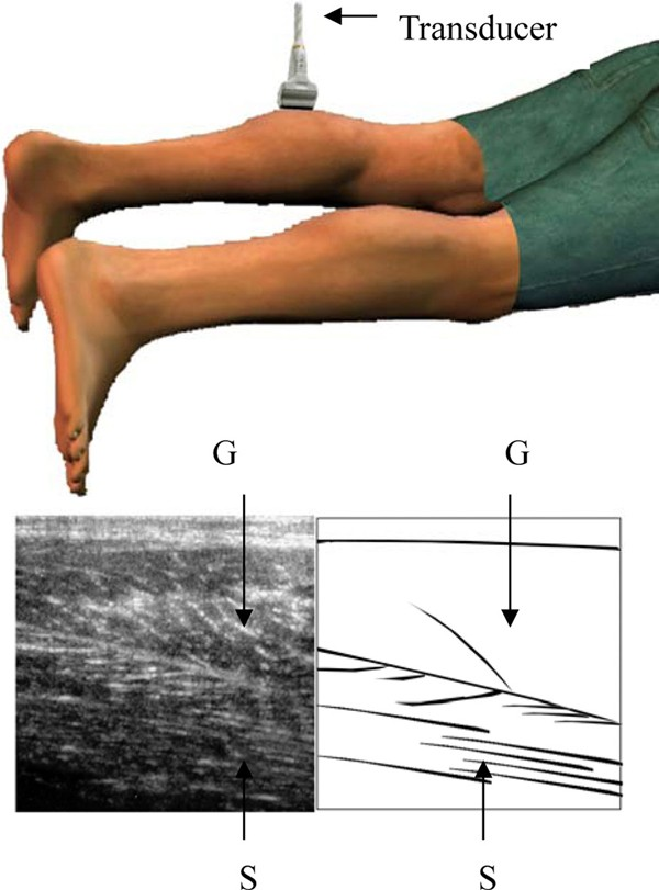 A Novel Approach To Sonographic Examination In A Patient With A Calf