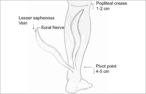 S-shaped reverse sural flap for reconstruction of tissue defect on ...