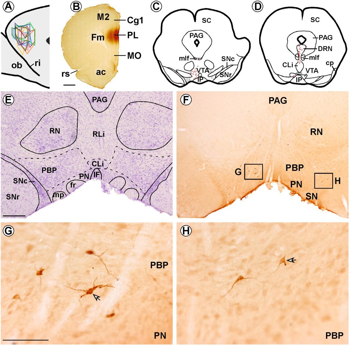 Hypocretin1/orexinA-immunoreactive Axons Form Few Synaptic