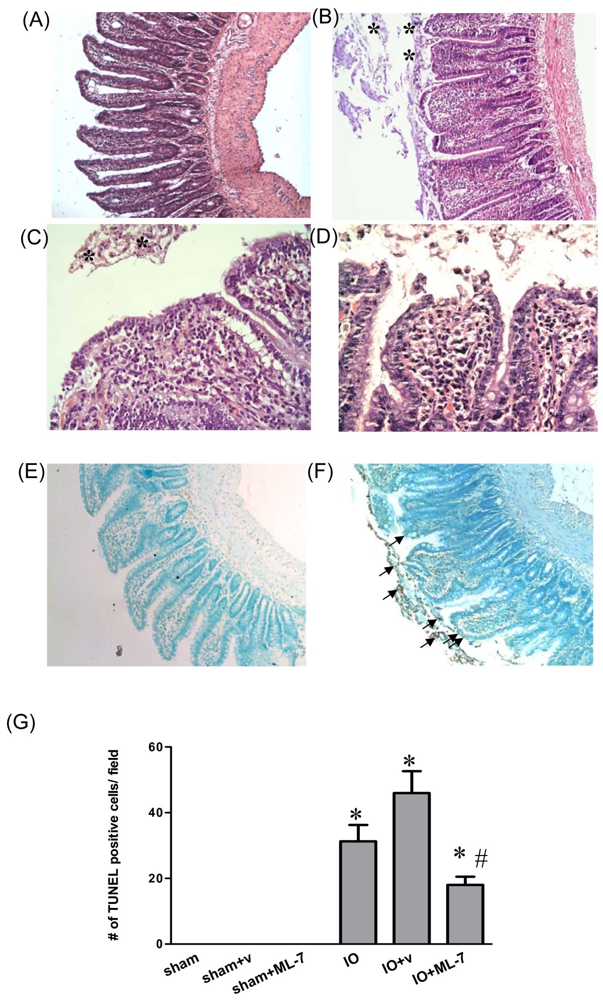 Role Of Myosin Light Chain Kinase In Intestinal Epithelial Barrier Defects In A Rat Model Of