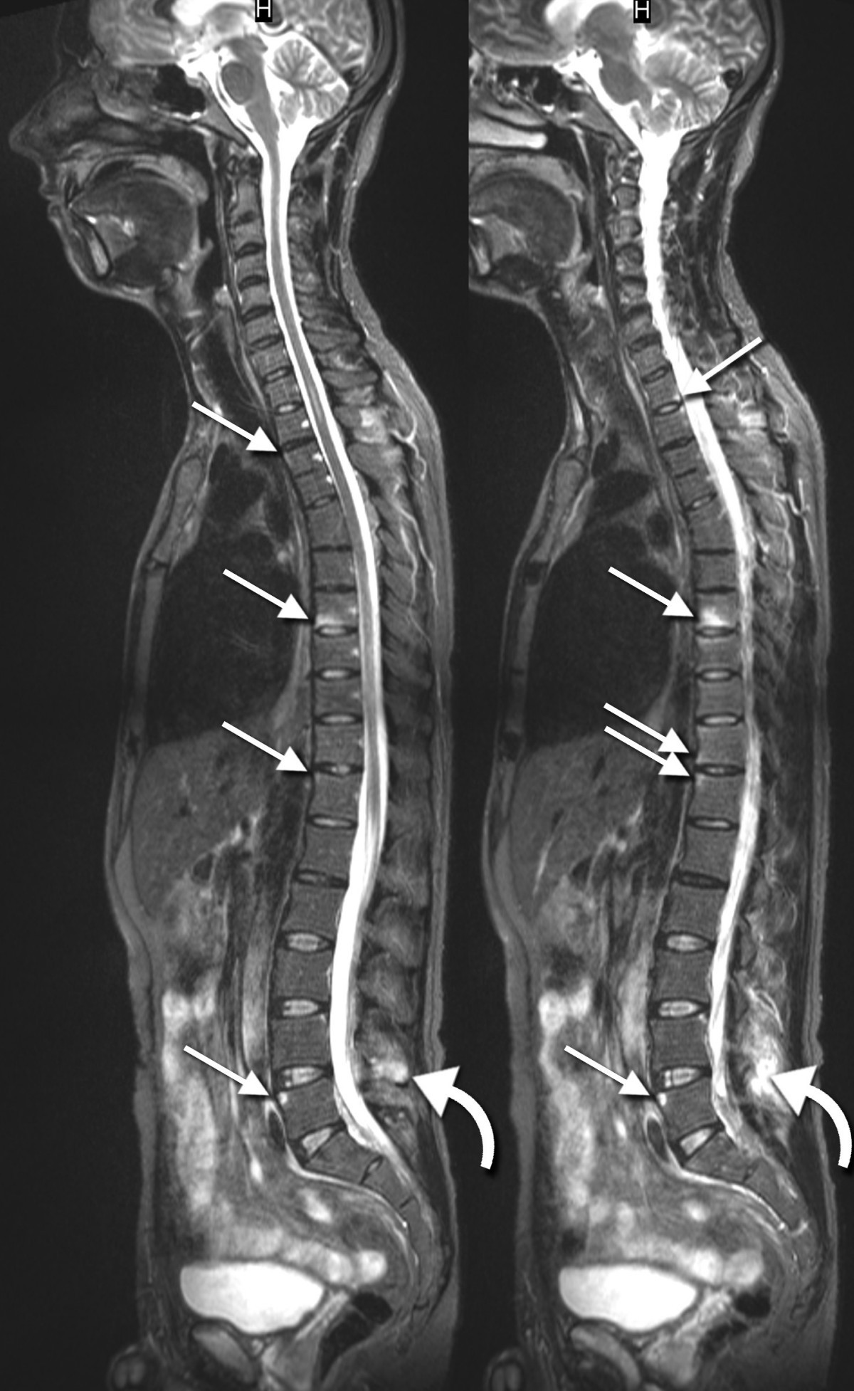 Whole Body Mr Imaging In Ankylosing Spondylitis A