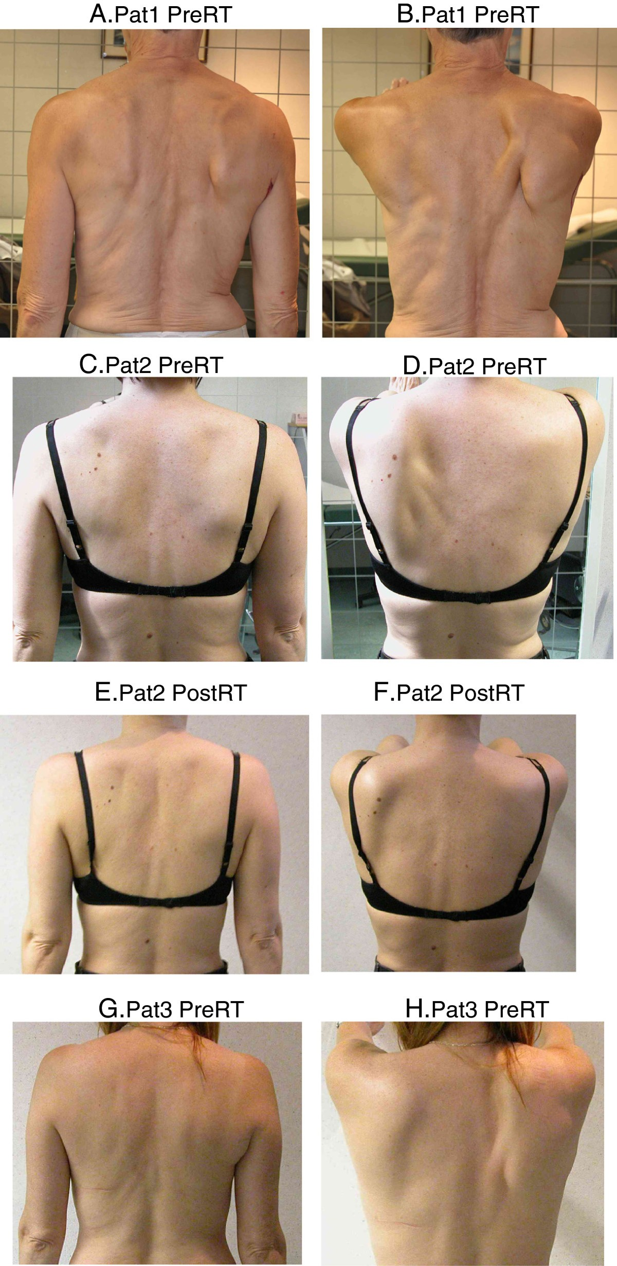 Scapula Alata In Early Breast Cancer Patients Enrolled In