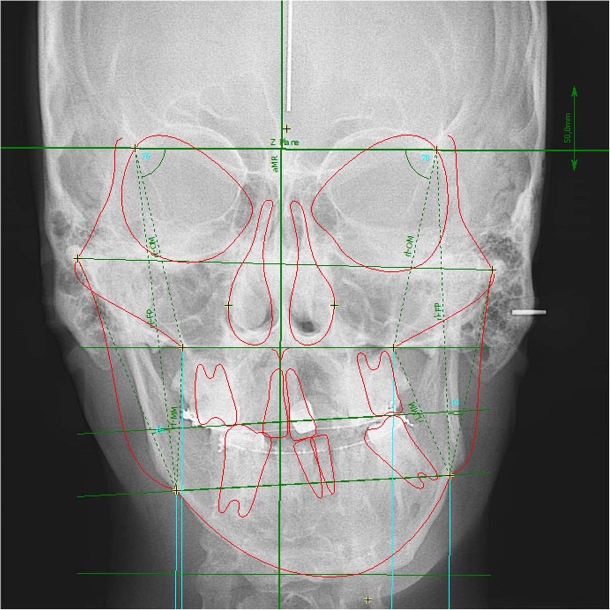 Image Result For Computerized X Ray In The Transverse Plane