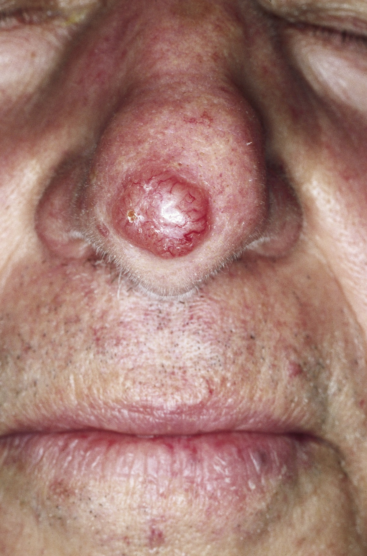 cutaneous lesions of the nose head amp face medicine