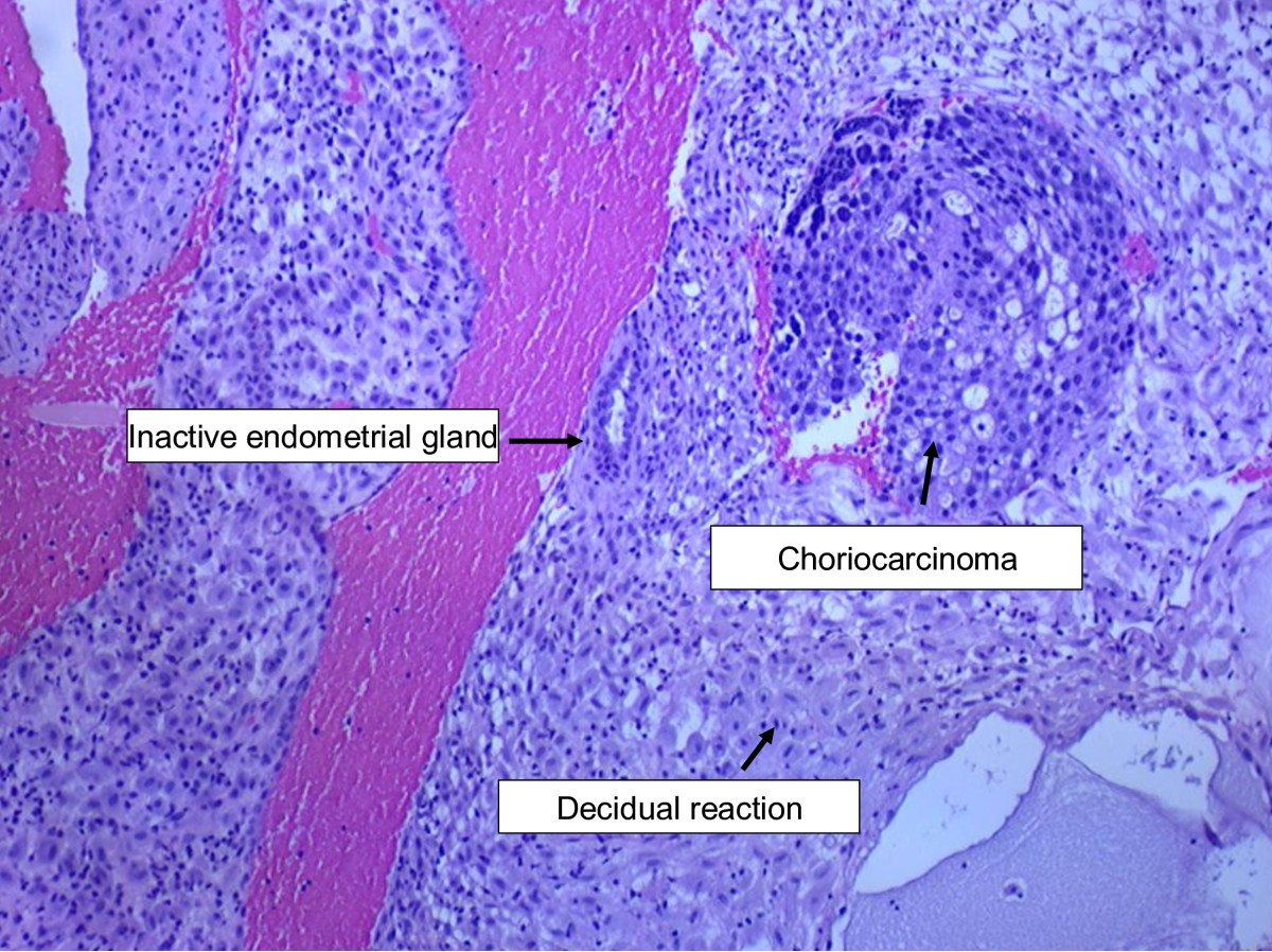 choriocarcinoma in a 73 year old woman a case report and endometrium diagram  #11