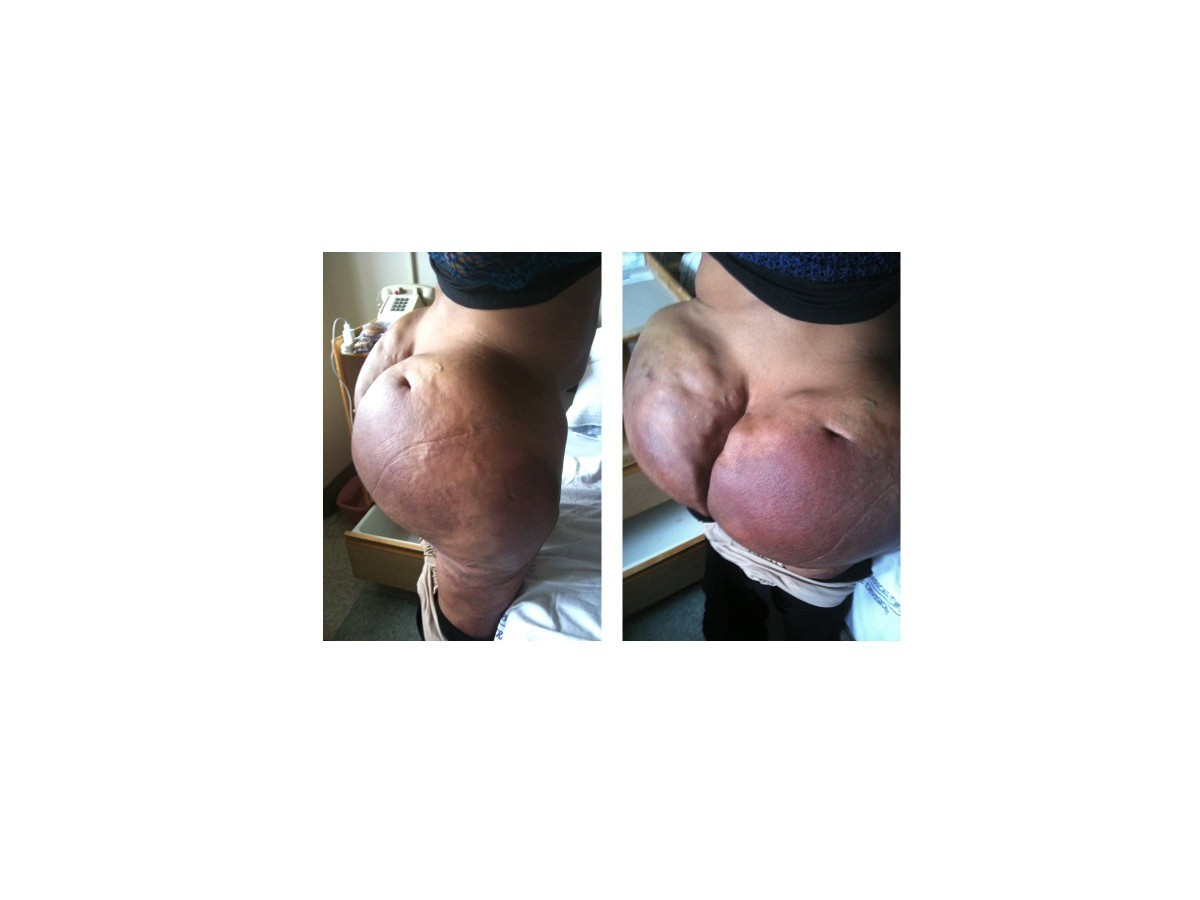 Hypercalcemia in a male-to-female transgender patient after body contouring injections: a case
