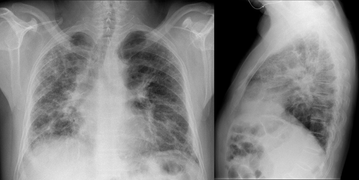 Clinical Case  Differential Diagnosis Of Idiopathic Pulmonary Fibrosis