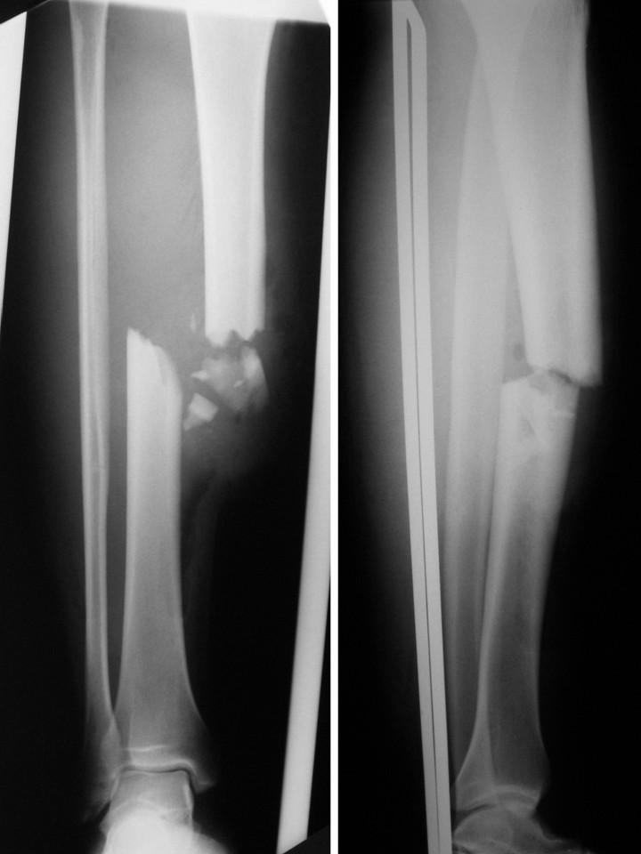 what is a compound fracture of the tibia and fibula
