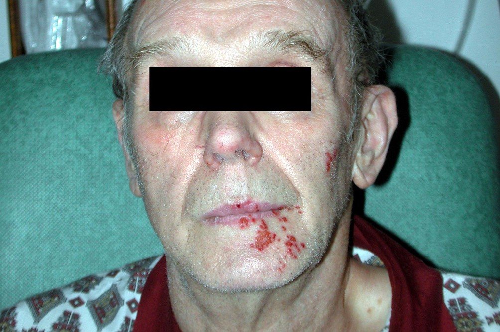 Facial Herpes Zoster Infection Precipitated By Surgical