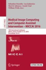 Learning-Based Multimodal Image Registration for Prostate Cancer Radiation Therapy