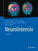 Aufgaben und Organisation von Neuro-Intensivstationen