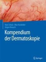 Geschichte der Dermatoskopie