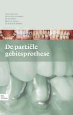 1 Partiële gebitsprothese; functies en typen