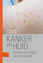 1 Huidkanker in Nederland