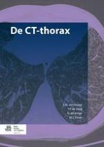 1 Techniek, indicaties en (relatieve) contra-indicaties van de CT-thorax