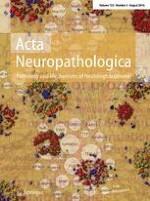 Acta Neuropathologica 2/2016