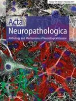 Acta Neuropathologica 5/2017