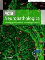 Acta Neuropathologica 3/2018