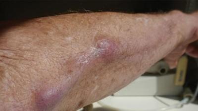 Unterarm knoten Lipom