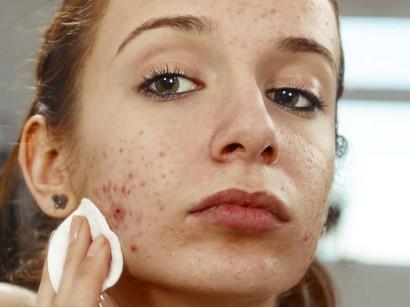 Frauen akne bei 10 DINGE,