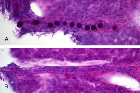 The images show a string of microspheres in an arteriole (A) and an empty arteriole of the same size (B).