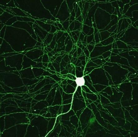Neurometals