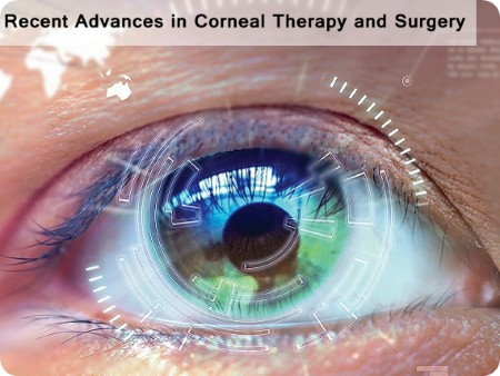 Recent Advances in Corneal Therapy and Surgery