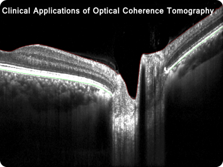 Clinical Applications of Optical Coherence Tomography