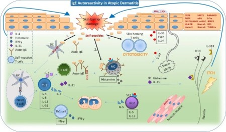 Featured Review_Ige autoantibodies