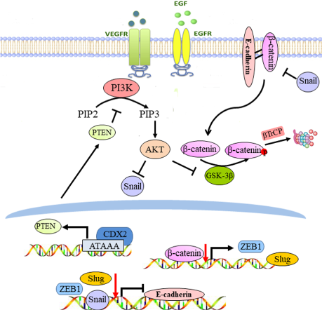 CDX2 inhibits epithelial–mesenchymal transition in colorectal cancer by modulation of Snail expression and β-catenin stabilisation via transactivation of PTEN expression