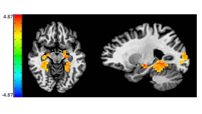 Mapping anticipatory anhedonia: an fMRI study | SpringerLink