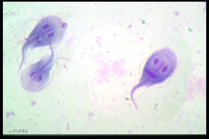 Giardia bij mensen zwanger Lamblia polysorb Giardia bij zwangerschap