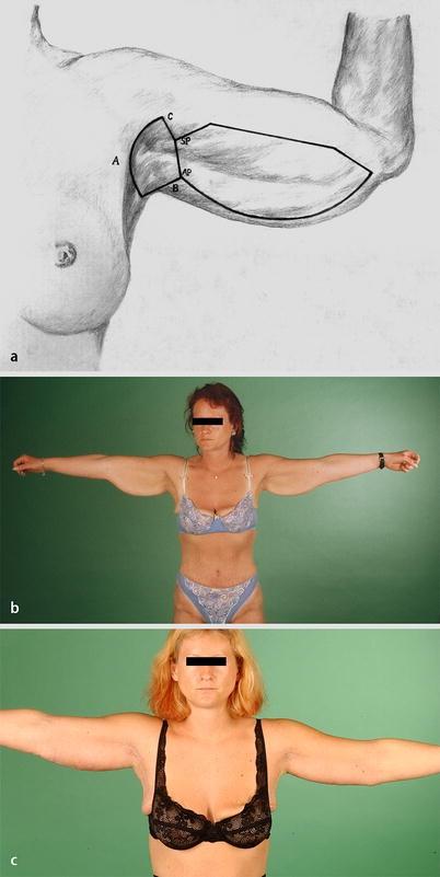 Op 75 c brust 75c Brust