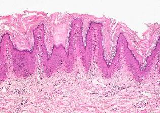 papillomatosis confluens et reticularis)