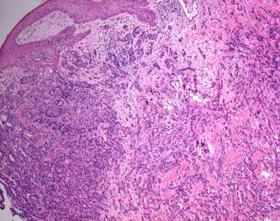 mammakarzinom invasiv