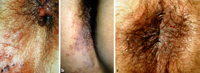 Bilder herpes genitalis frau