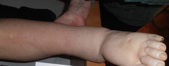 Rechtes bein dicker als das linke