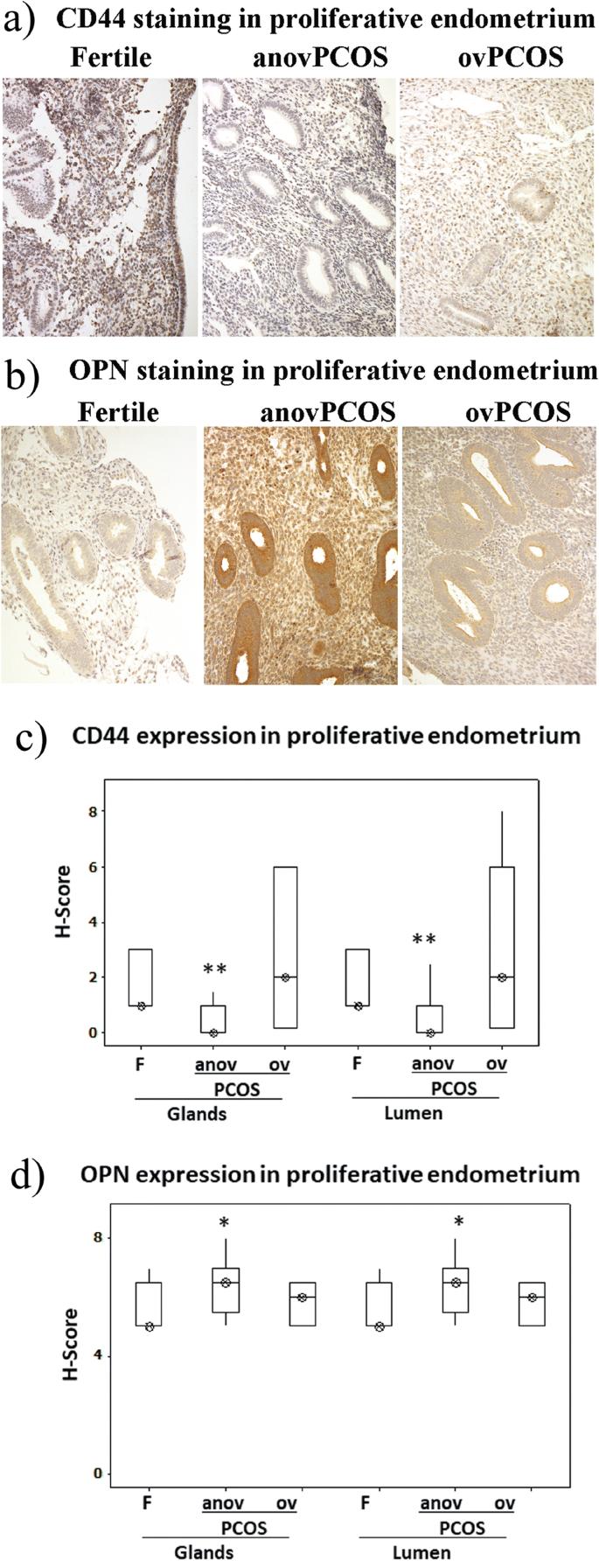 Proliferative endometrium biopsy result