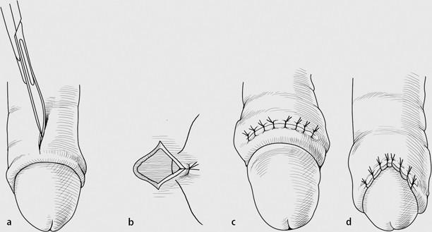 Frenulum beschneidung