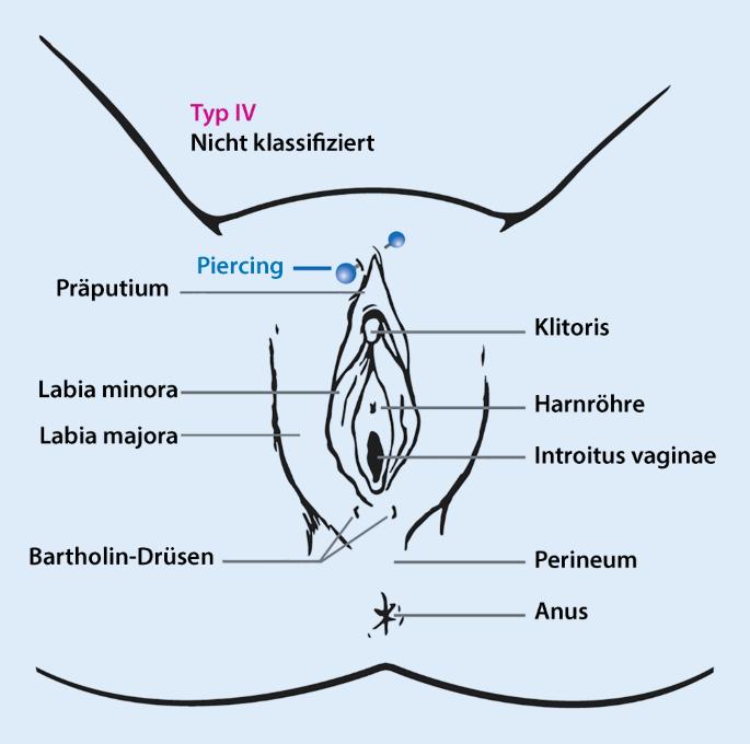 Drüse abszess der bartholinischen Bartholinitis
