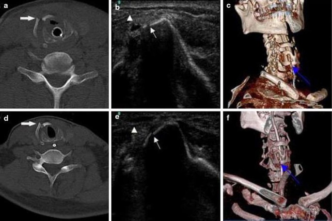 Rapid Detection Of Thyroid Cartilage Fracture By Ultrasound In A