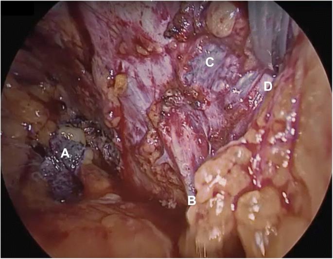 Complete laparoscopic removal of retropubic midurethral ...