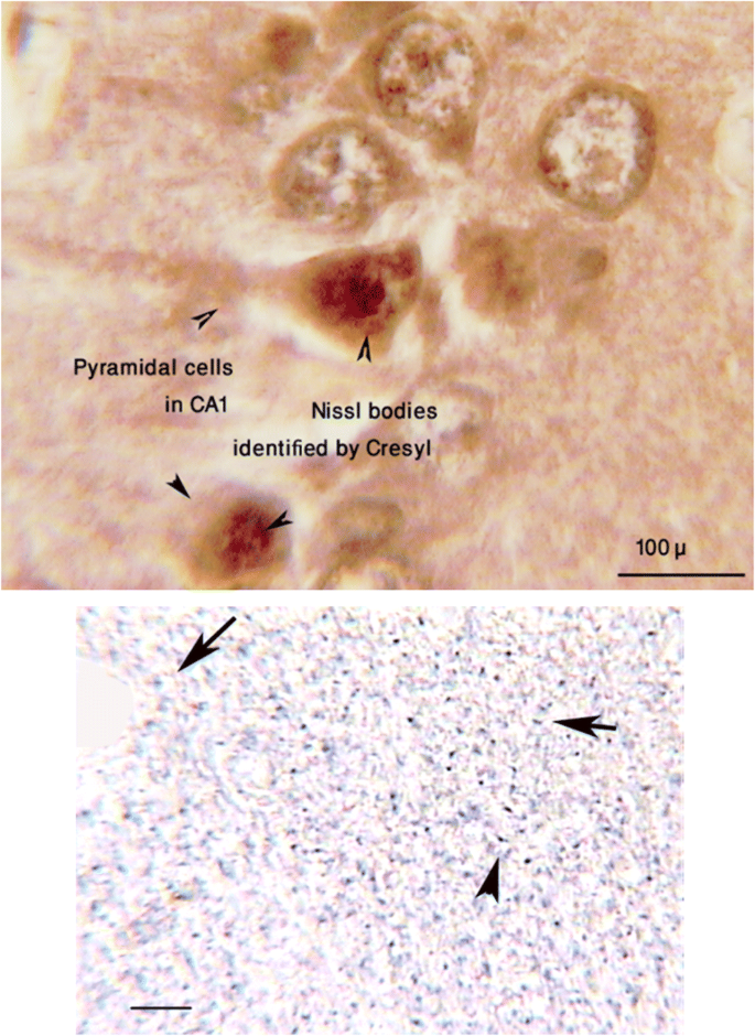 Silver nanoparticles (Ag-NPs) in the central amygdala protect the ...