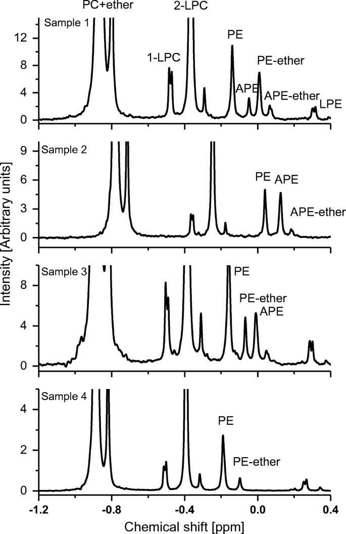 Automated Multicomponent Phospholipid Analysis Using 31 P Nmr