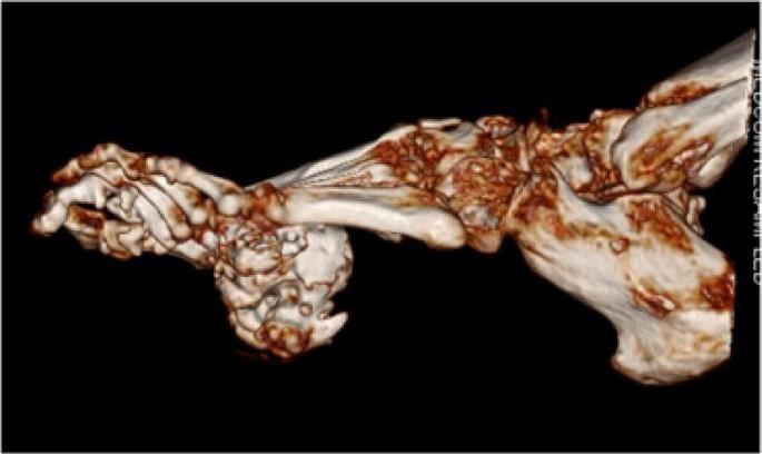 erős phylloidosis és teniosis hogy néz ki a fénysugár