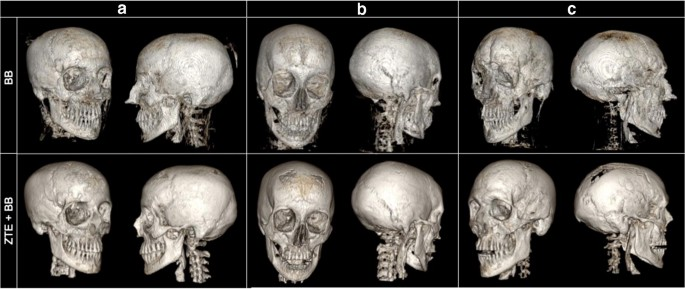 Automated 3D MRI rendering of the craniofacial skeleton: using ZTE ...
