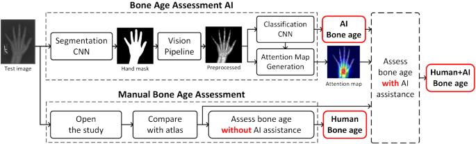 Artificial intelligence-assisted interpretation of bone age ...