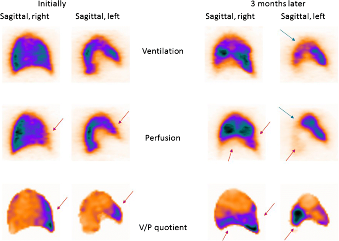 EANM guideline for ventilation/perfusion single-photon emission ...